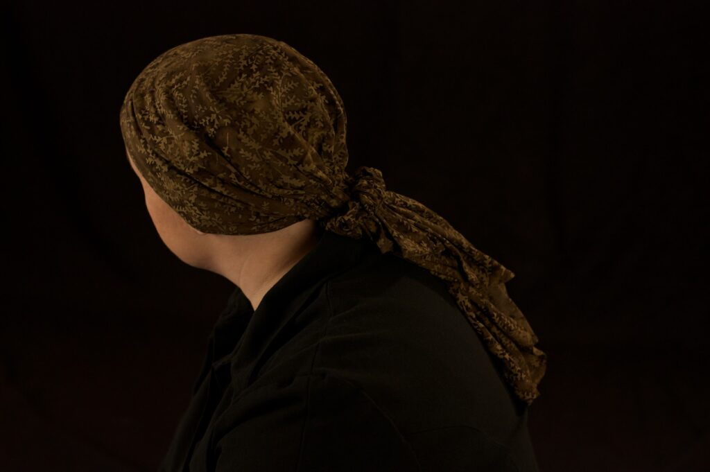 Woman wearing head scarf for Hair Loss