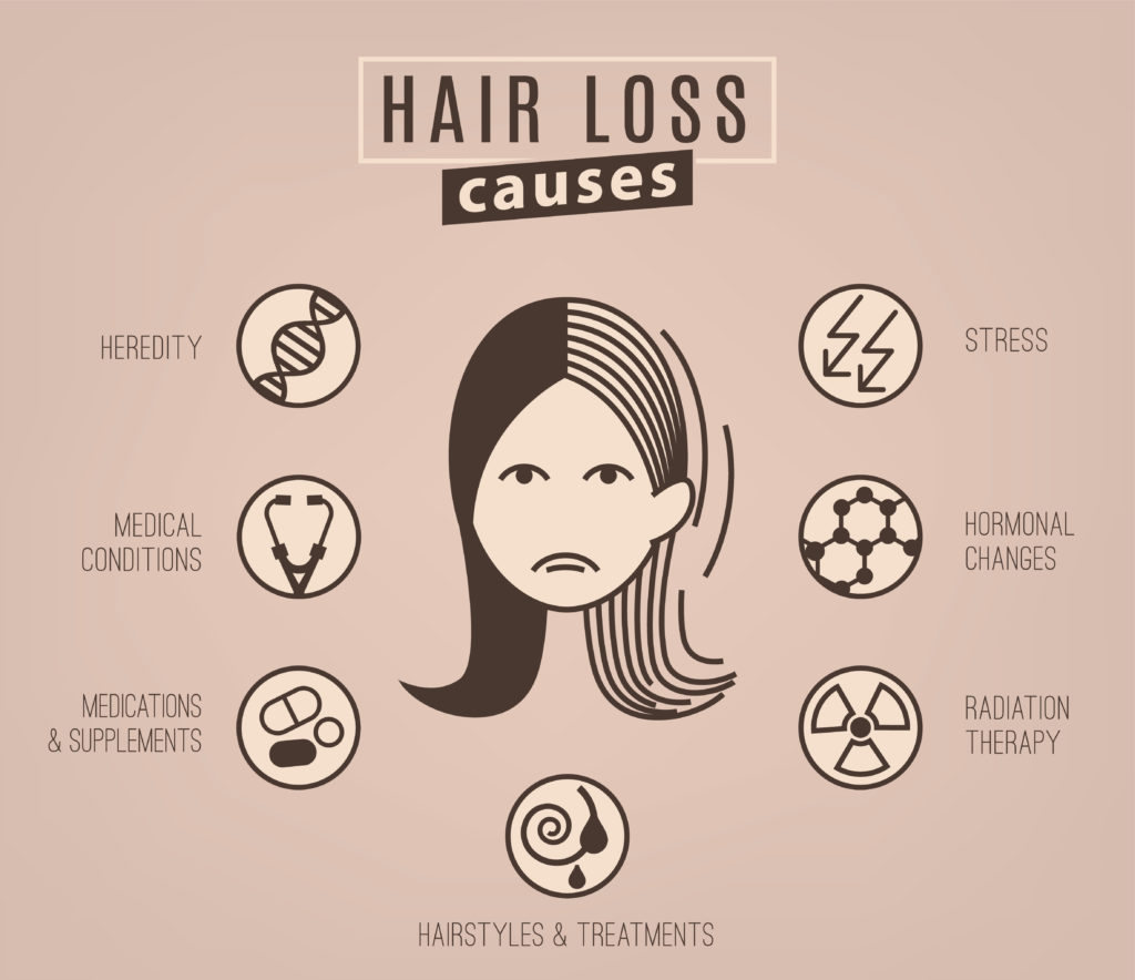 Infographic of Hair Loss