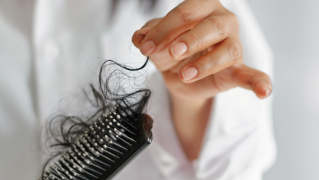 Picture of Hair Loss in Brush